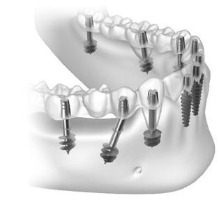 6 ползи от лечението с базалните зъбни импланти